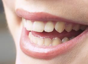 短期集中歯科治療について